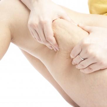 Nuevo pack de Weleda: Tratamiento anticelulítico 100% natural de abedul